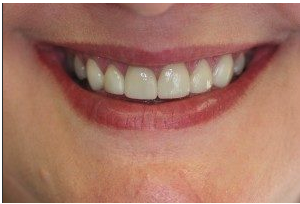 Porcelain Veneers After | Warrensburg | Oak Grove