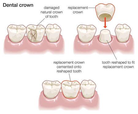 dental crowns warrensburg mo | Ridgeview Family Dental