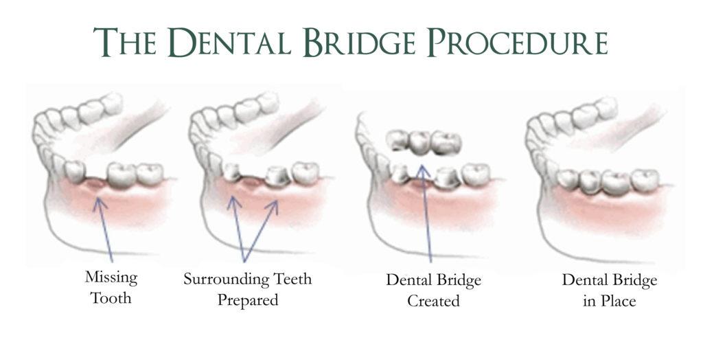 Dental Bridge Procedure   Replace Missing Teeth Warrensburg MO   Oak Grove   Windsor