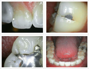 Intraoral Image | Ridgeview Family Dental