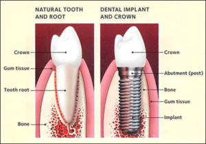 Dental Implants Warrensburg MO | Oak Grove | Windsor
