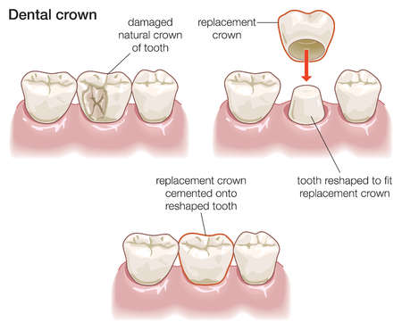 Dental Crowns | Porcelain Crowns Warrensburg MO | Oak Grove | Windsor