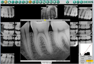 Dental X-Rays Warrensburg MO | Oak Grove | Windsor