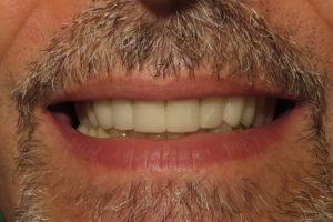 After Porcelain Veneers | Ridgeview Family Dental | Warrensburg MO