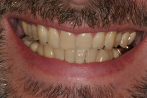 Before Porcelain Veneers | Ridgeview Family Dental | Warrensburg MO