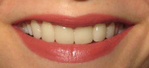 Porcelain Veneers | Ridgeview Family Dental MO